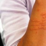 Alergie skóry